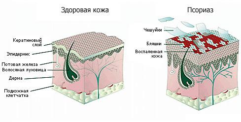 Схематический рисунок показывающий в сравнении участок здоровой кожи и пораженной псориазом